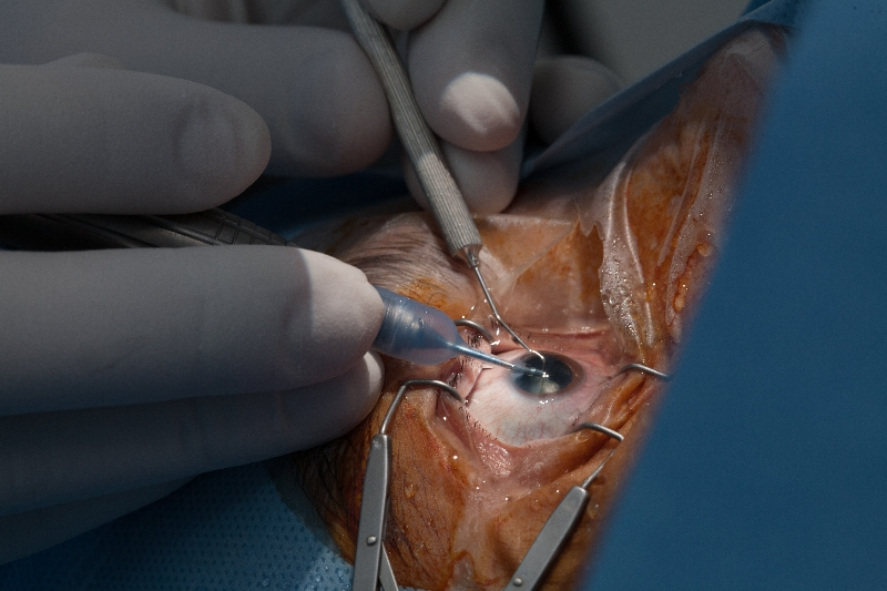 p012-operatii-in-clinica-gauss