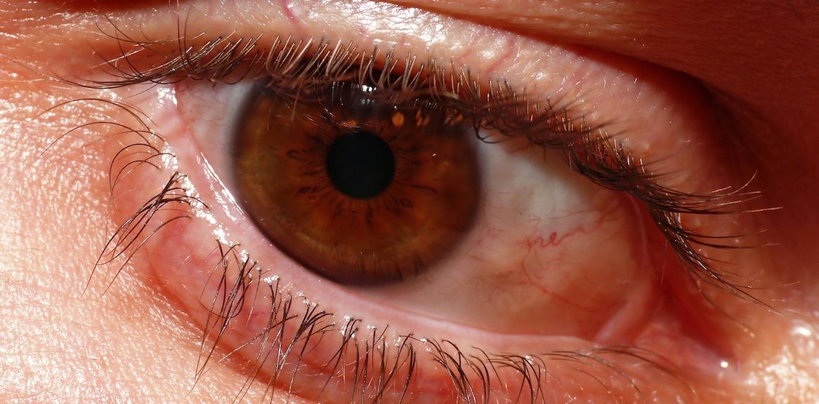 Stiati ca ochii inrositi si obositi pot aparea si din cauza lipsei din alimentatie a vitaminelor A si B2?